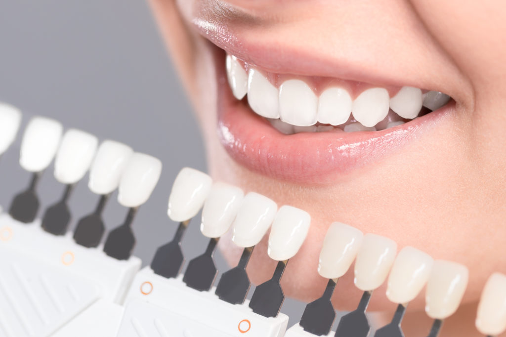 Teeth Whitening Tewkesbury Dental